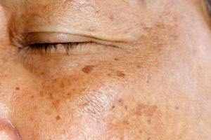 Пигментация складок кожи