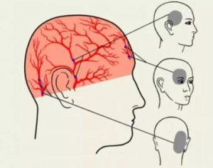 Колит, давит и щипит в голове