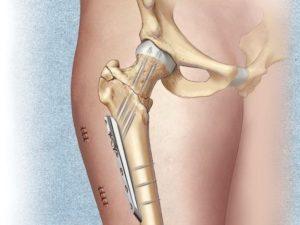 Перелом шейки бедра, операция при ВИЧ