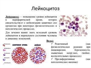 Лейкоциты в крови при аллергии