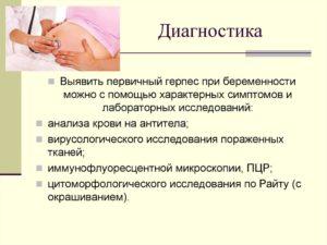 Первичный герпес на 22 неделе беременности