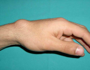 Красные мягкие шишки возле суставов пальца