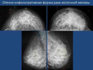 Инфильтративные изменения молочной железы