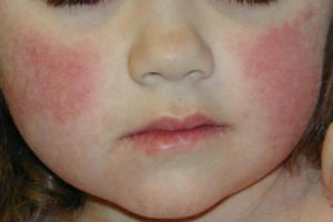Красное пятно на щеке у ребенка