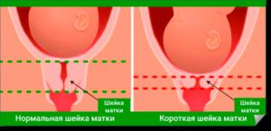 Короткая шейка матки и прострелы во влагалище