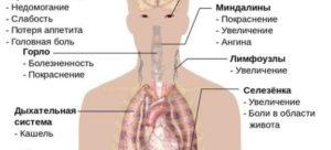 Инфекционный мононуклеоз температура уже 3 недели