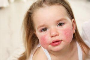 Контактный дерматит или аллергия у ребенка