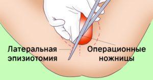 Боль во время секса после разреза промежности при родах