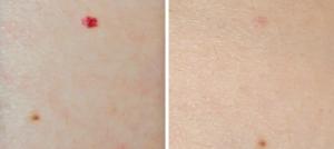 Красные родинки, сосудистые аневризмы, гемангиомы на коже