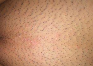 Красные пятна на лобке после бритья