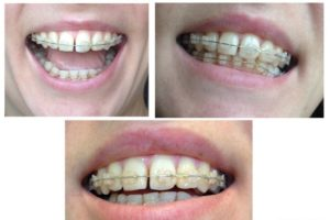 Искривились зубы после снятия брекетов