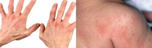 Лишай, эритема или дерматит - помогите разобраться!