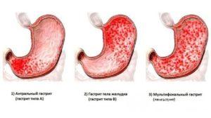 Хронический гиперацидный гастрит с нарушением функции ощелачивания в антральном отделе