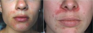 Периоральный дерматит и розацеа - лечение роаккутаном