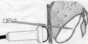 Катетер в желчном пузыре