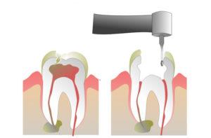 Болит зуб при нажатии
