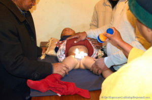 Как остановить кровотечение после обрезания