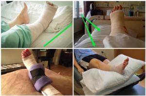 Когда можно наступать на ногу после операции