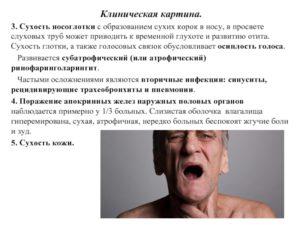 Боль в горле и сухость в носу