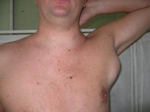 Киста на груди. Лимфоузел под мышкой. Это рак?