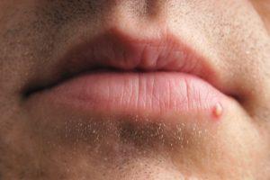 Болячки на губе и рядом с губой