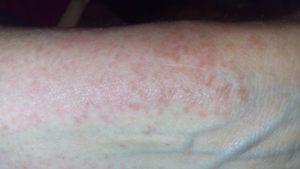 Болит кожа, появилось высыпание