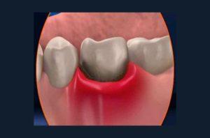 Болит клык и опухла десна вокруг зуба