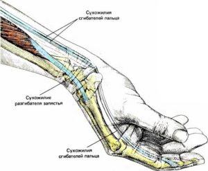Болит кисть при сжатии в кулак