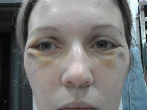 Как убрать отеки под глазами после уколов