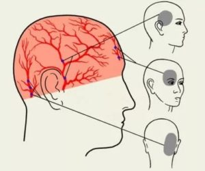 Болит участок головы справа