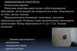 Пиококковая гранулема у ребенка