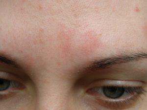 Малиновые шелушащиеся пятна на лице