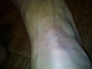 Болячка на ноге долго не проходит