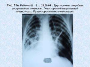Левосторонняя пневмония без динамики