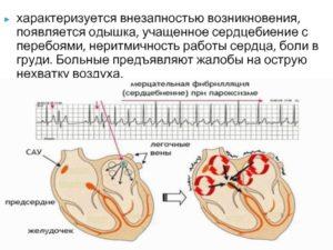 Боли в сердце и учащенное сердцебиение