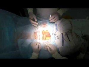 Боли после операции по перекруту яичка
