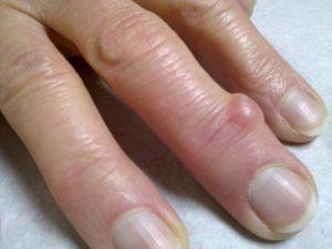 Болячки на суставах пальцев