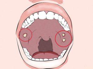 Болезненная ямка во рту