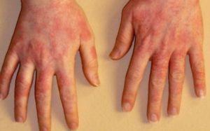Инфекция или аллергическая реакция на Glo?