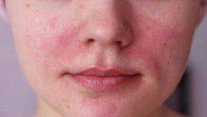 Красные точки преимущественно на левой щеки с покраснениями