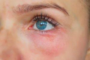 Болячка под глазом