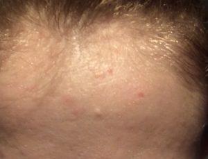 Болячка на лице не заживает