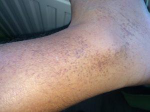 Мелкая коричневая сыпь на ногах