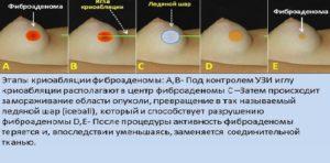 Изменилась форма груди после удаления фиброаденомы