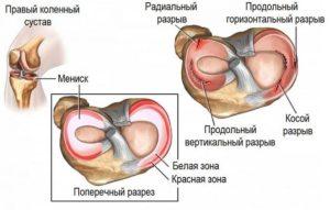 Боль в колене после операции миниска