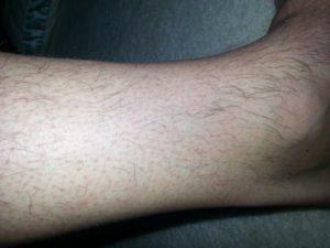 Красные пятна на ногах, наподобие растяжек