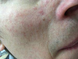 Краснота и мелкая сыпь на щеках