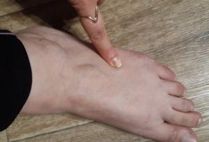 Боль с верхней части ступни