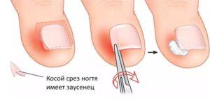 Болит палец после подстригания ногтя в уголке