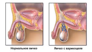 Лёгкая боль в придатке яичка от онанизма?